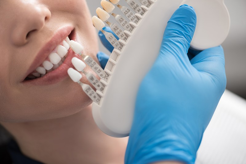 Dental-Bridges-Enumclaw-WA