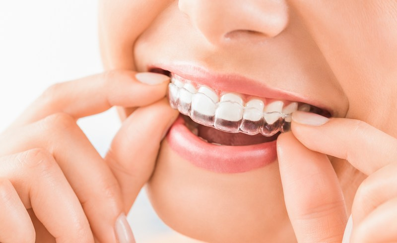 Invisalign-Dentistry-Maple-Valley-WA